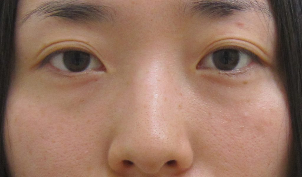 経結膜脱脂法63-1ー術後3ヵ月後