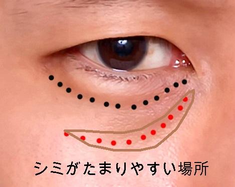 経結膜脱脂法5-茶クマが出来やすい場所を点線で示した図