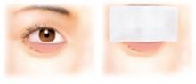経結膜脱脂法66-術中の目の状態