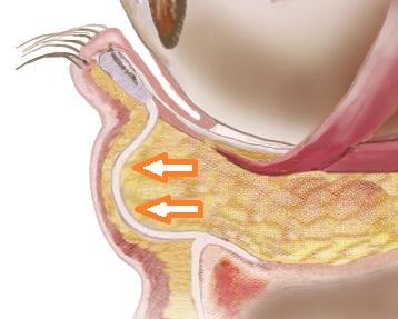 経結膜脱脂法1-眼窩脂肪が眼輪筋を圧迫