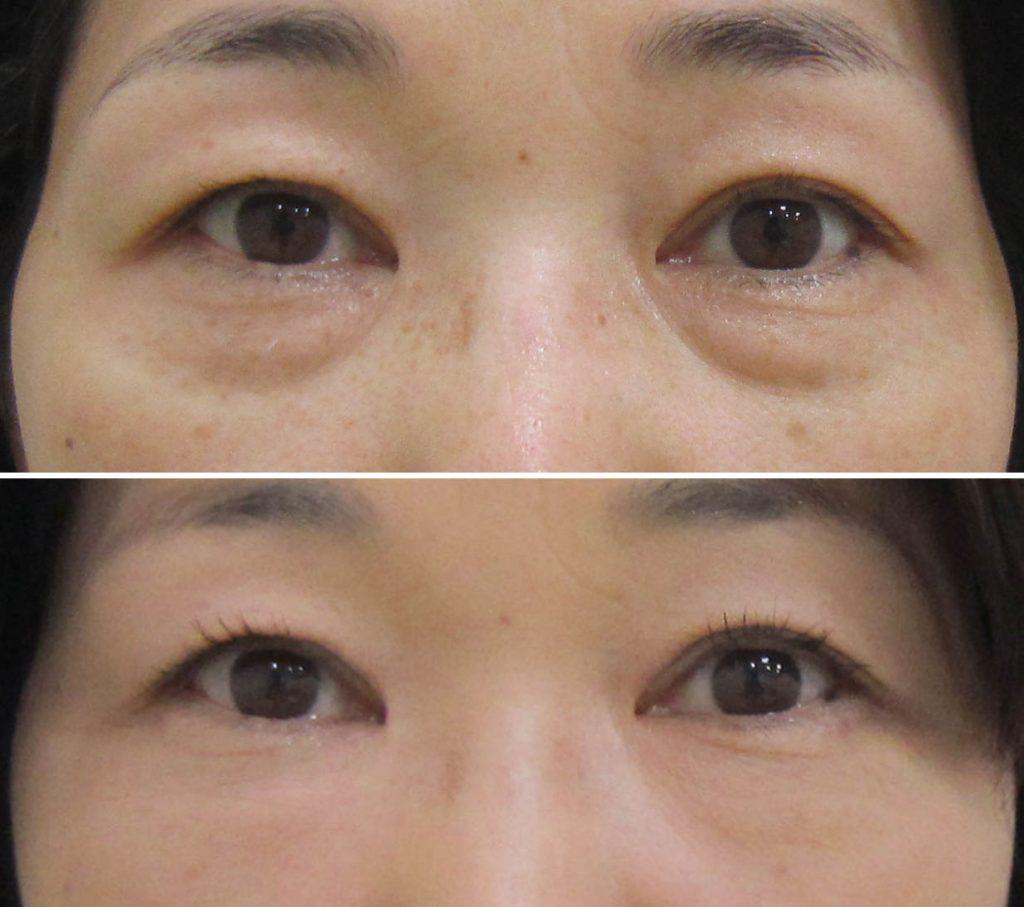 経結膜脱脂法55-pre 7m 2