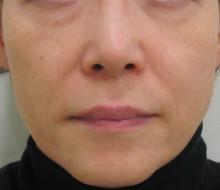 経結膜脱脂法72-6-39-4