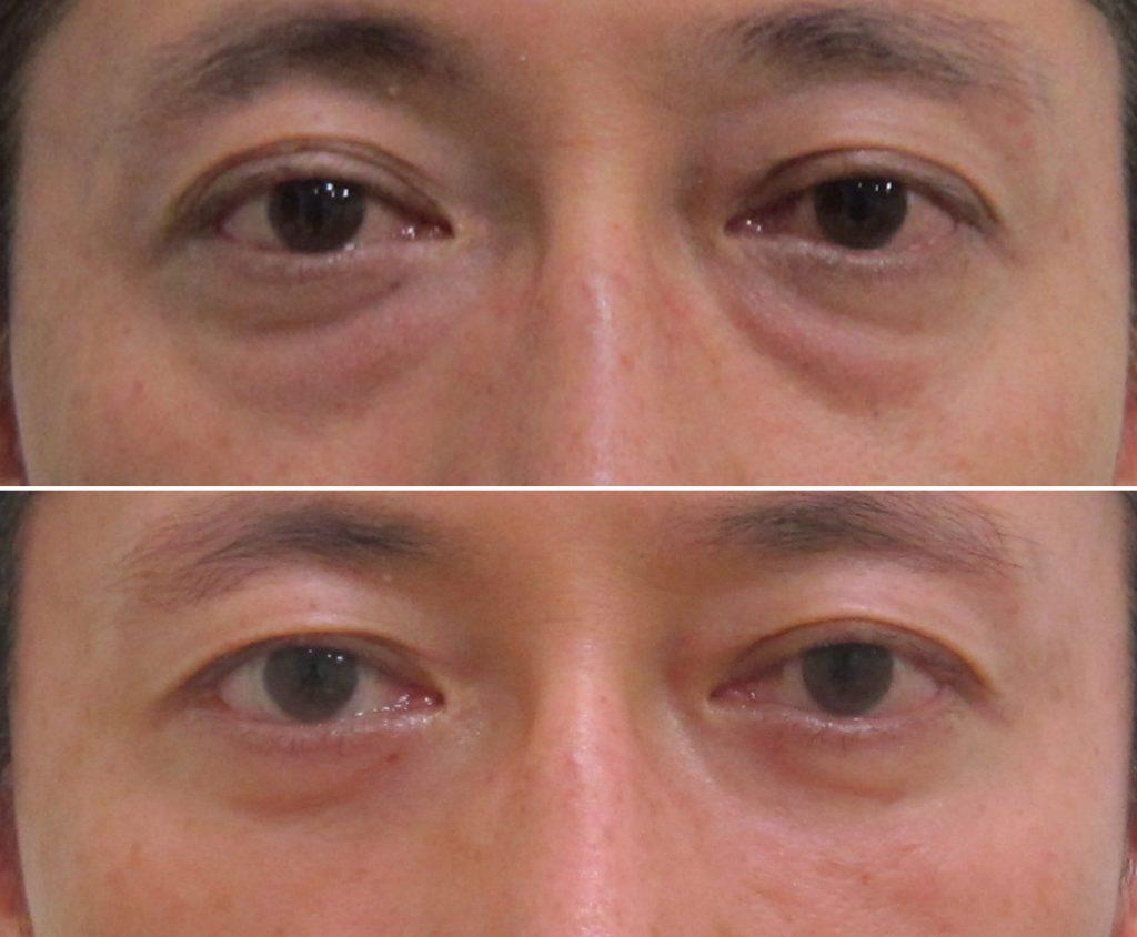 経結膜脱脂法56-pre 6m (2)