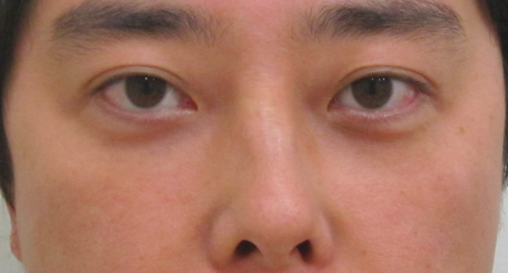 経結膜脱脂法10-黒クマ+赤クマの術後