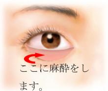 経結膜脱脂法15-麻酔の位置