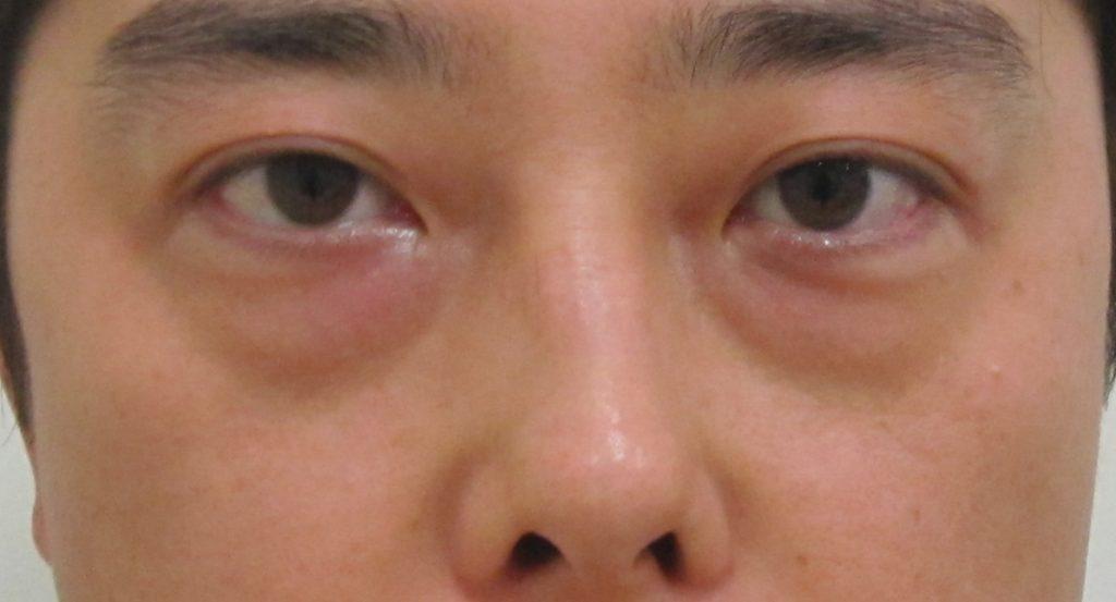 経結膜脱脂法9-黒クマ+赤クマの術前