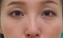 経結膜脱脂法40-目の下の治療ー治療前