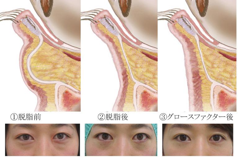 経結膜脱脂法16-目の下の断面図と経過説明