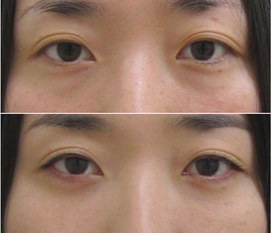 経結膜脱脂法48-pre 6m 1 (2)