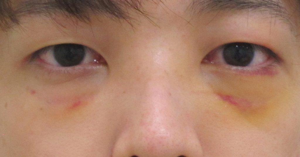 経結膜脱脂法18-術後内出血の例