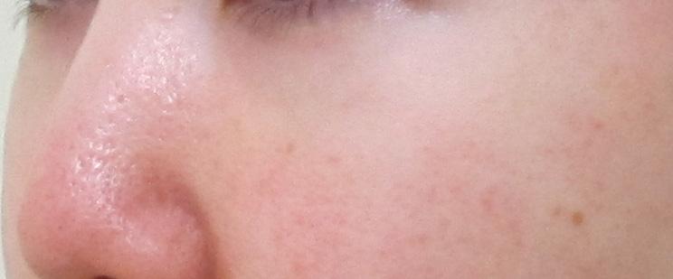 目の下のクマ-他院にて脱脂、脂肪注入後(斜め)