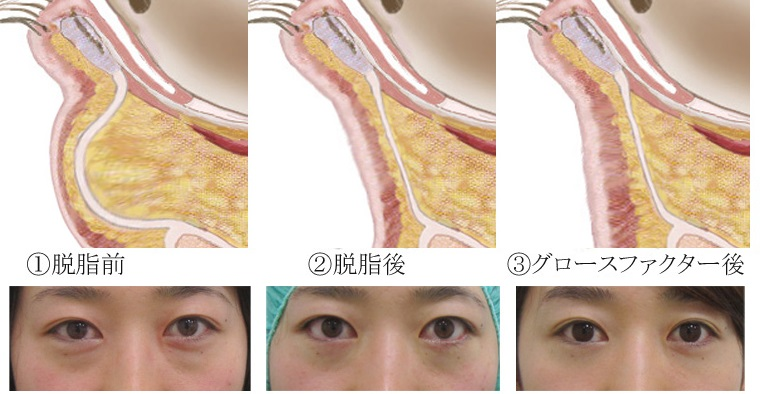 経結膜脱脂法36-目の下の治療ー術前断面図 経過 説明付き'