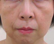経結膜脱脂法23-術前