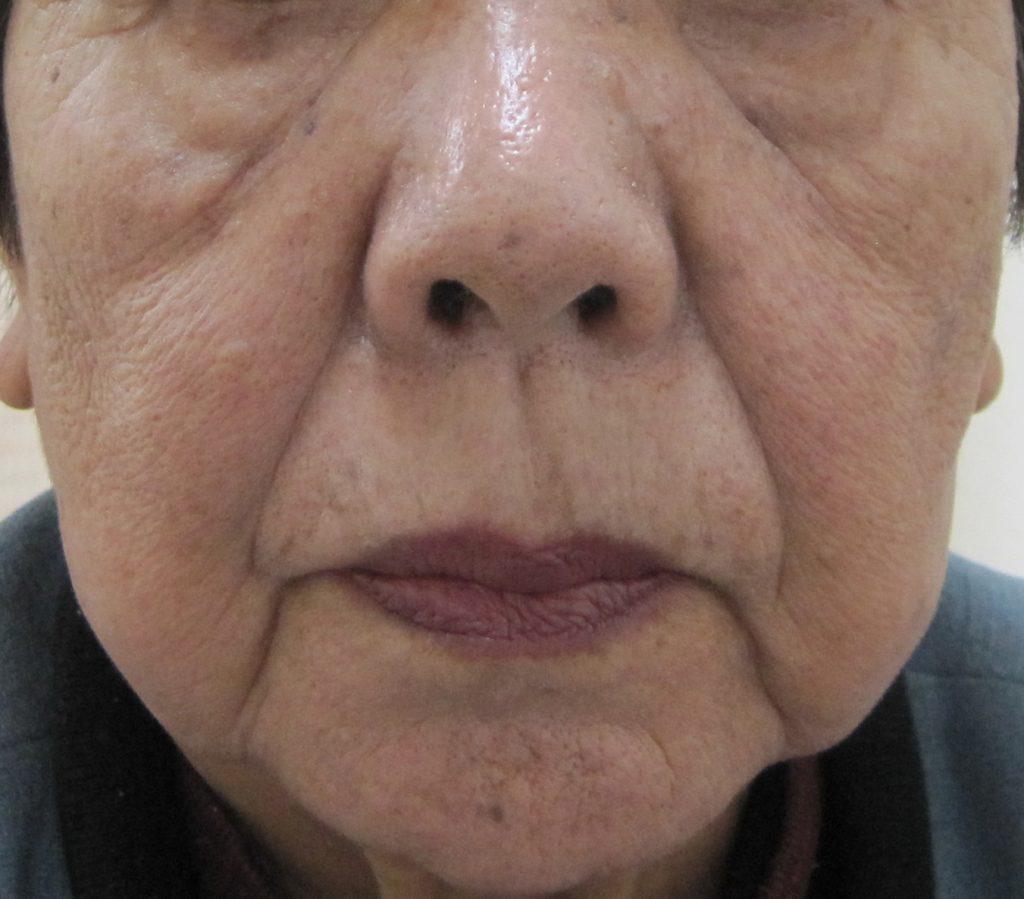 80代の方の顔全体のグロースファクター治療前