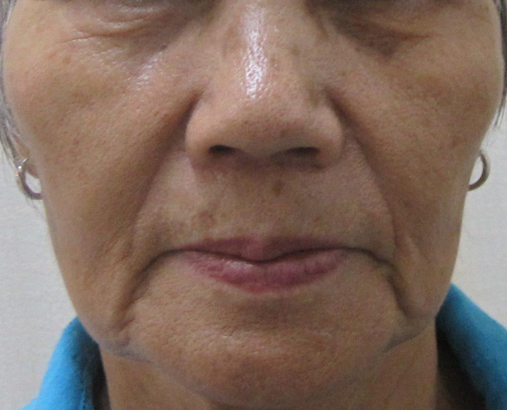 70代の方の顔全体のグロースファクター治療前