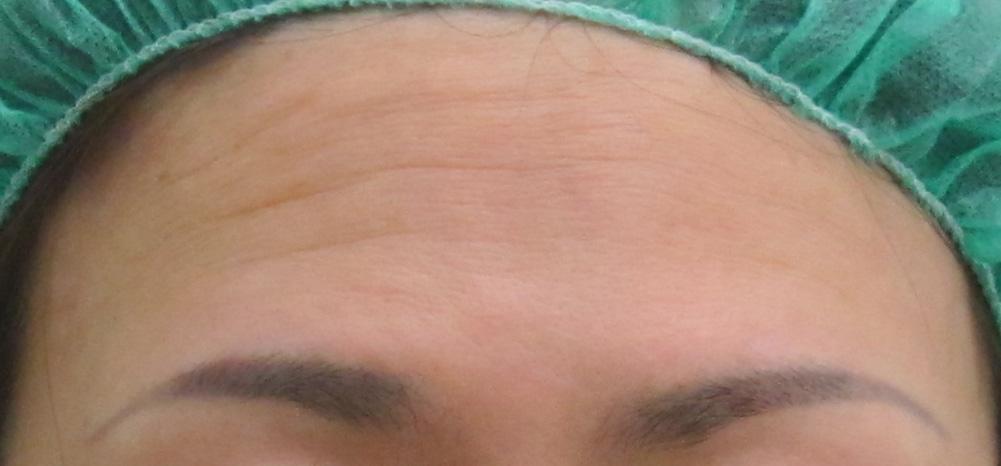 グロースファクターによる額のシワ治療前