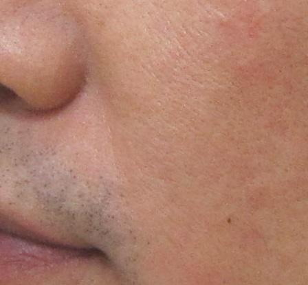 赤ら肌の写真