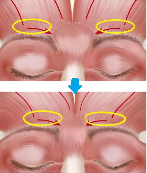 眉間の筋肉の動きにより縦ジワができる
