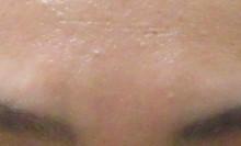 症例2眉間のシワ治療前