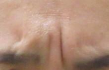 症例2眉間のシワ治療前ー動かした状態