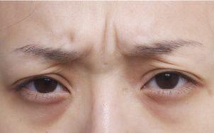 眉間のシワの画像