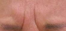 眉間のシワ動かした状態ー治療前