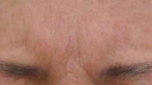 眉間のシワ動かした状態ー治療後6ヶ月