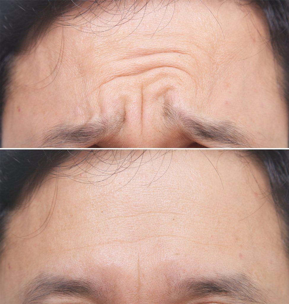 ボトックスを眉間に打った治療前後の写真