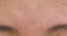 眉間のシワ治療後6ヵ月後