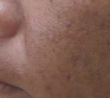 脂性肌の写真