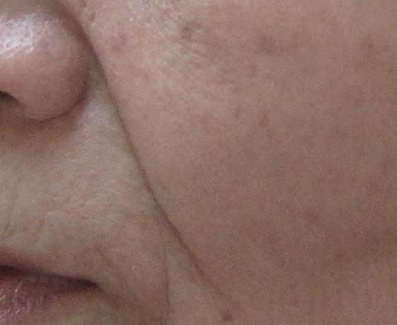 乾燥肌の写真