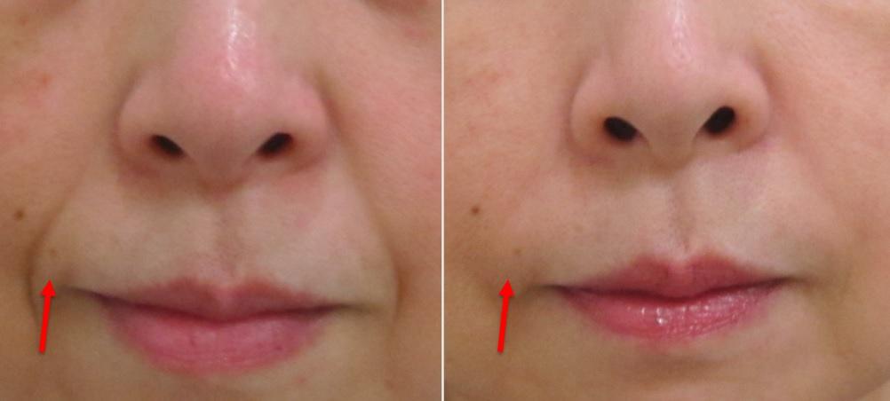 ほうれい線の皮膚余剰
