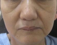 4-2-1グロースファクター治療前