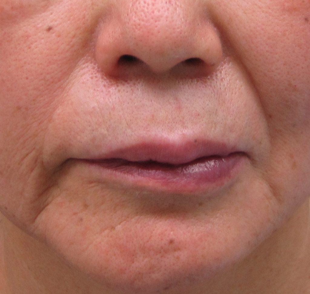 1-9-3ほうれい線は顔面神経麻痺で左右差が出る