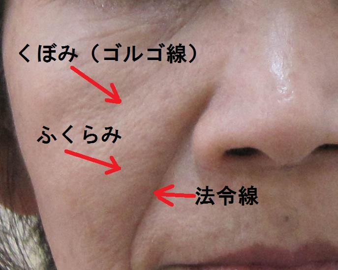 1-2-ほうれい線と頬のたるみ