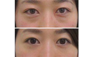 経結膜脱脂とグロースファクターによる目の下のクマ治療の術前と術後の比較写真