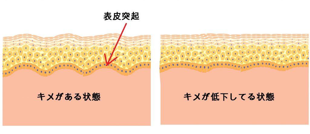 キメのある皮膚とない皮膚を比較した図