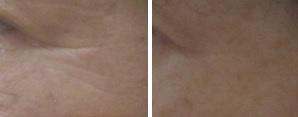 治療前(メイクあり)4ヵ月後(メイクなし)⇒小ジワ改善2