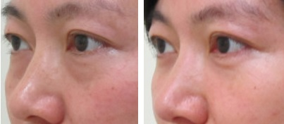 経結膜脱脂による涙袋の変化